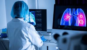 Afecțiunile căilor respiratorii inferioare