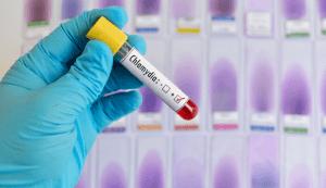 Clamidioza